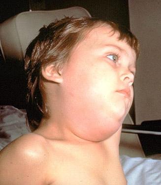 mumps_symptoms